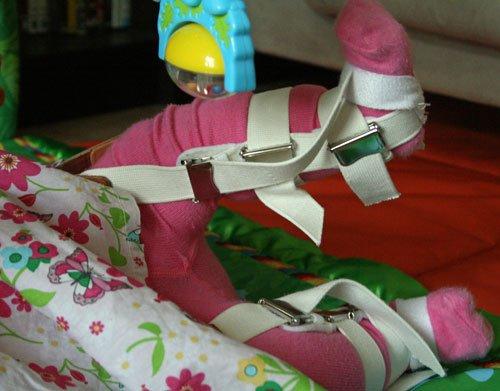 pavlik bandage